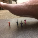 Can acupuncture help neuropathy